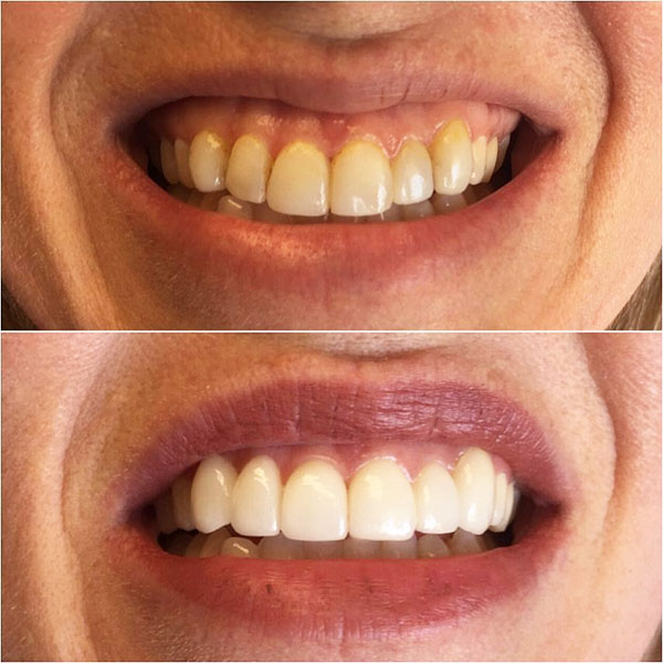 Excellent Care In A Kind Conservative: Before And After